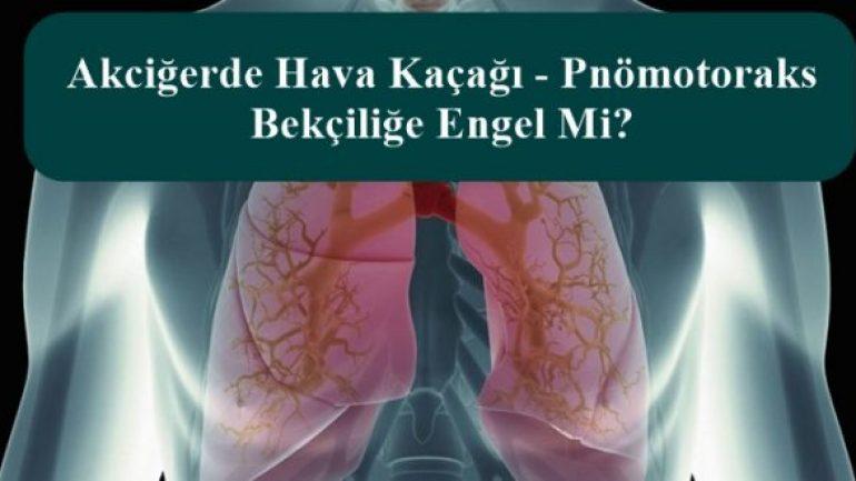 Akciğerde Hava Kaçağı – Pnömotoraks Bekçiliğe Engel Mi