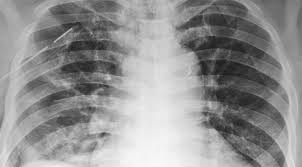 Akciğerde Hava Kaçağı – Pnömotoraks